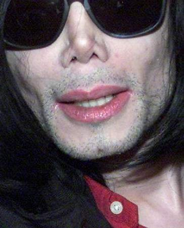 Michael Jackson´s Beard Stubbles later on in his life after the Vitiligo skin disorder progressed