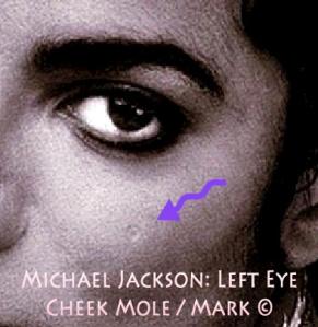 TWIN EYE: Michael Jackson Natural LEFT EYE Cheek Mole in light round Form ©