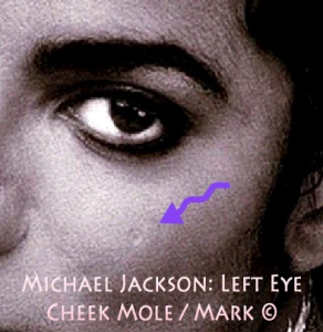 TWIN EYE: Michael Jackson Natural LEFT EYE Cheek Mole in light round Form ©