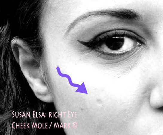 TWIN EYE: Susan Elsa Natural RIGHT EYE Cheek Mole in light round Form ©