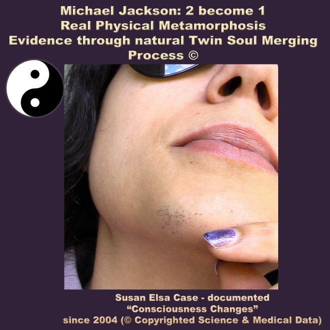 Twin Soul Metamorphosis Evidence Susan Elsa Michael Jackson © Personal Medical Data not for Re-Use or Imitation!