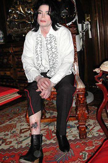 Michael Jackson´s Spider Bite Photo on Leg- He really got bitten and Twin Soul felt it over distance in her Leg