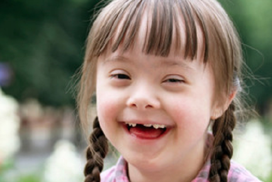 Beautiful Girl Smiling - Photo for educational Purpose raising Awareness on Down Syndrome- ANGELS AMONG US © The Dalia Project for Disabled Children